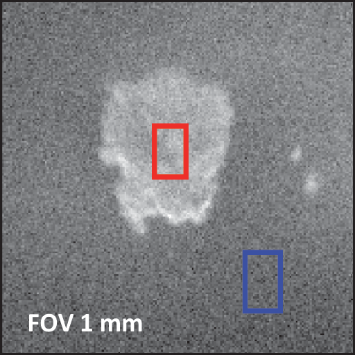 Secondary electron image