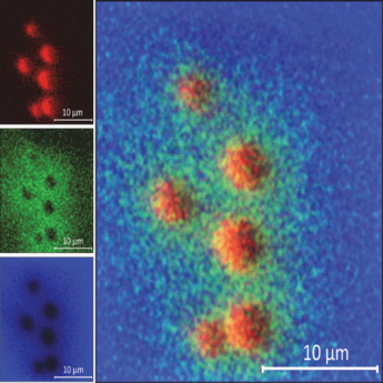 Molecular Imaging with High Spatial Resolution and High Mass Resolution (HR²)