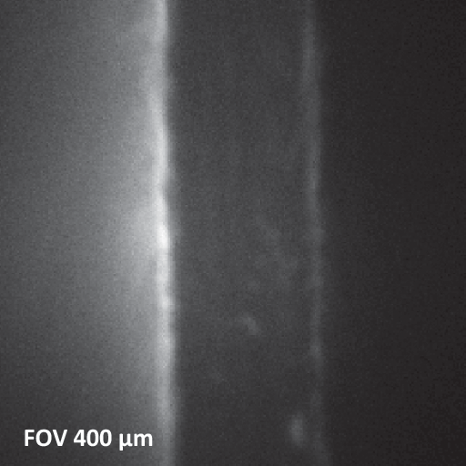X-ray beam induced secondary electrom image
